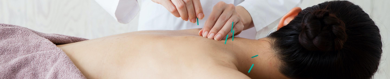 Akupunktura Chodzież